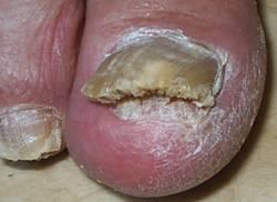 Споры грибов на ногтях лечение