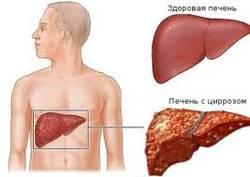 Цирроз печени степени
