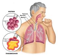 Пневмония у новорожденных