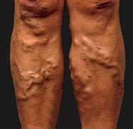 Пульсация в венах на ногах что это