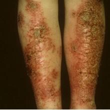 кожные паразиты у человека фото