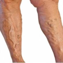 Как лечить народными средствами варикоз ног у мужчин