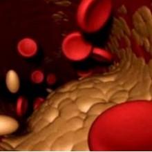 холестерин лекарства лечение народными средствами